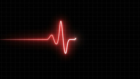 EKG 60 BPM Loop Screen, Red w/ Grid. Heart rate monitor / electrocardiogram (EKG or ECG) loop beeping at 60 beats per minute for screen savers or computer monitor displays, animated at 60fps.