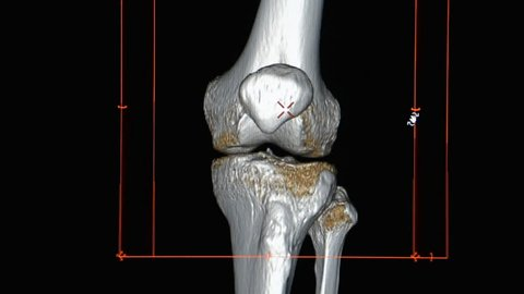 CT Scan image of Both knee / 3d rendering image rotating on monitor.