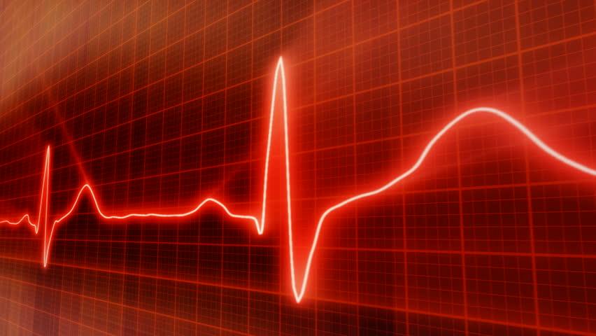 seamless loop red background EKG electrocardiogram pulse real waveform