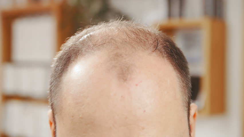 Man with hair loss problems close-up 4K. Long shot dolly slide of mand top of the head in focus while looking down showing bald parts of the head.   Shutterstock HD Video #1010308850