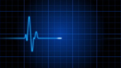 An electrocardiogram heart monitor pulses on a blue grid (Loop).