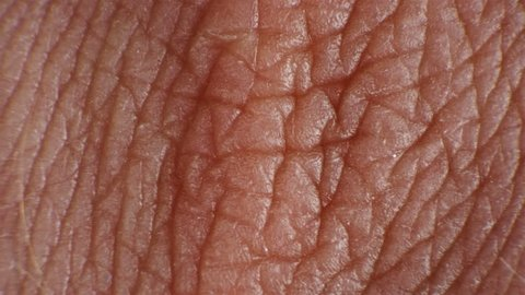 wrinkled and cracked human skin under a microscope