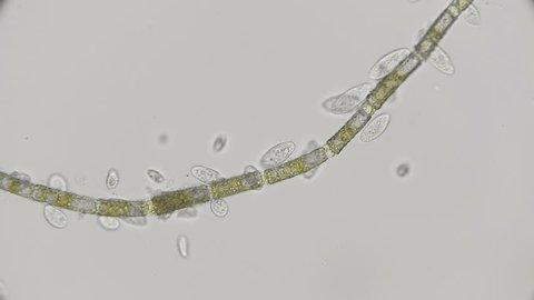 colony of Paramecium infusorium feeding on algae, under a microscope