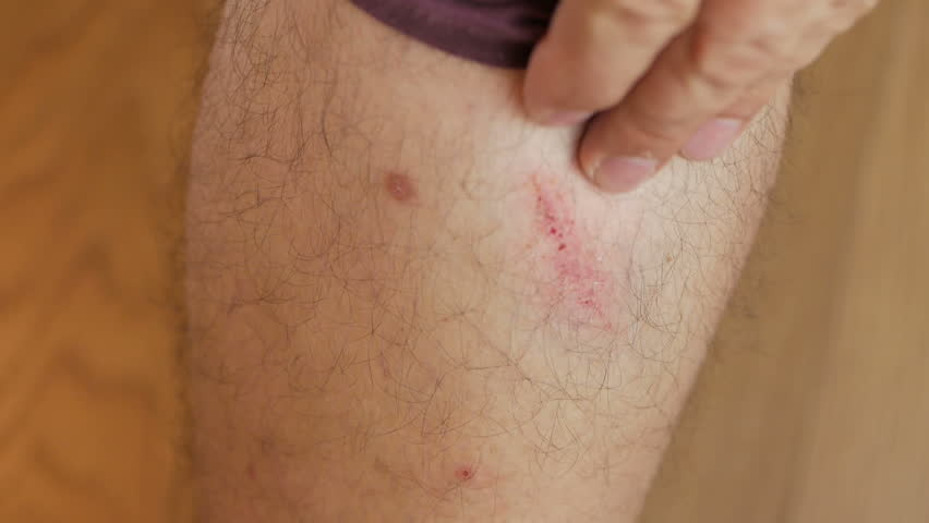 A man examines his injured leg, stroking his wound with his fingers. | Shutterstock HD Video #1015017280