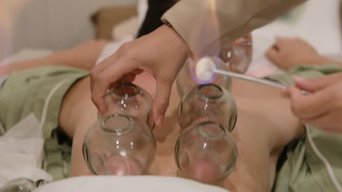 patience undergoing of chinese cupping therapy