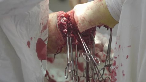 Surgery of leg amputation close-up with big tissues excision and a lot of   surgical clamps hanging (4K, 25fps)