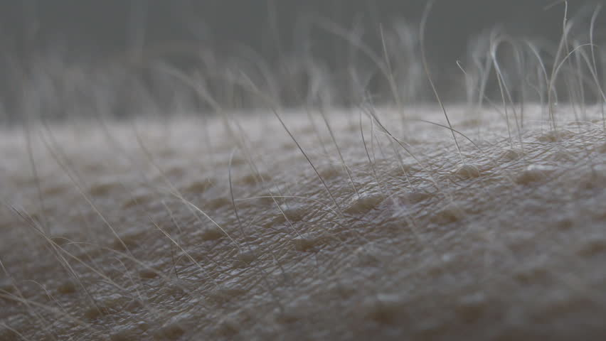 Goosebumps close up. Hair on the hand stand up and falls. Skin reaction to cold, fear, or good music. Horripilation on skin.  | Shutterstock HD Video #1023589810