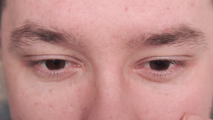 From above of adult man lying on couch and instilling drops into eyes and blinking | Shutterstock HD Video #1024655630