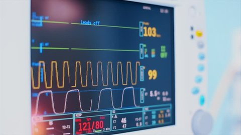 Monitoring of patient's condition, vital signs on ICU monitor in hospital. Medical ICU monitor with patient's vital signs