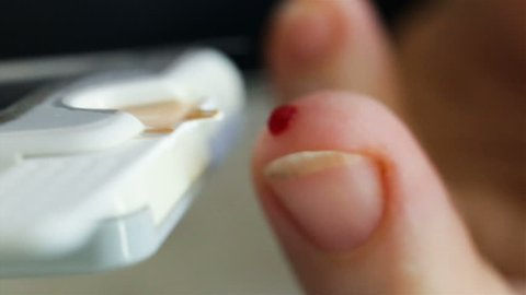 Adult woman independently makes a rapid test for diabetes. Super close-up. A person transfers a drop of capillary blood from finger to contacts of test strip. Real time, shallow depth of field