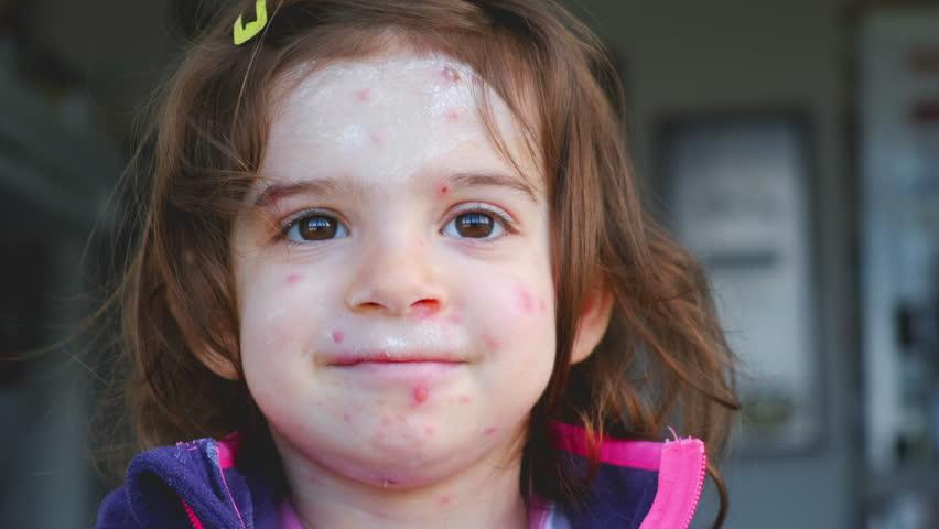 Chicken pox varicella disease of child face portrait .   Shutterstock HD Video #1025877290
