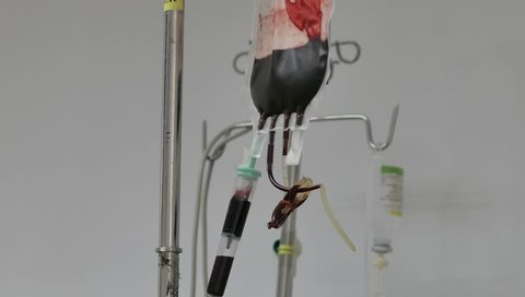Blood bag hanging on the tripod during blood transfusion therapy for Patient getting Blood transfusion in medicine hospital clinic.