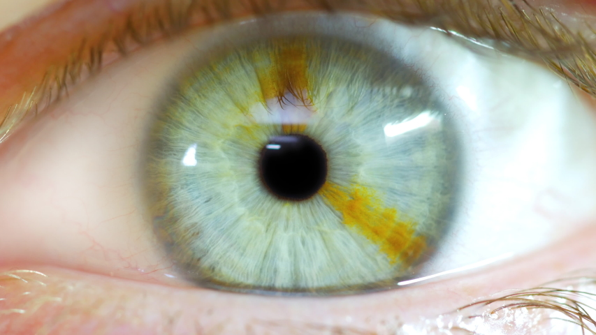 male opening eye to reveal pupil with brown sectoral heteochromia birthmark in iris #1029816380