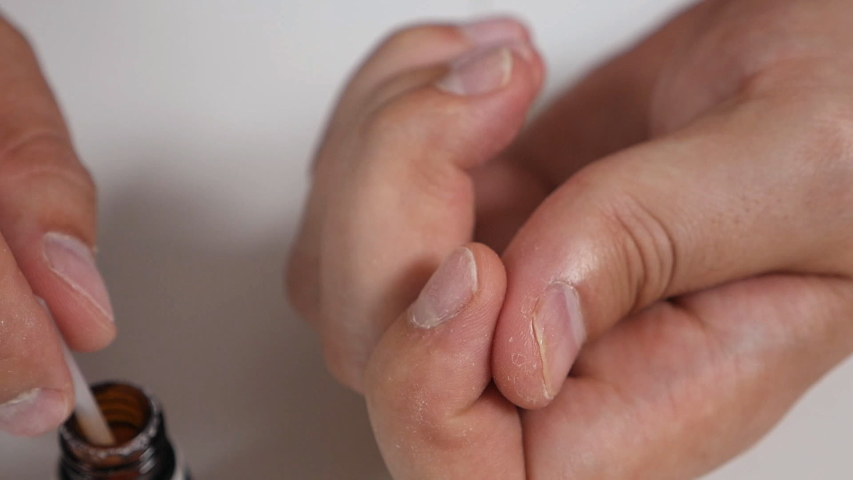 Toenail fungus. Man at home treat nail fungus, special medicine, medicines | Shutterstock HD Video #1036310420
