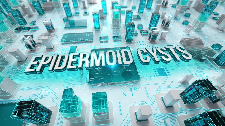 Epidermoid Cysts with medical digital technology concept | Shutterstock HD Video #1039211030