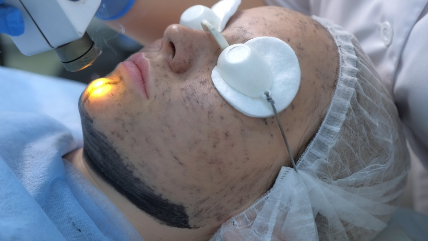Portrait of woman on laser carbon face peeling procedure in beauty clinic on chin, closeup view. Hardware cosmetology treatment. Process of photothermolysis, warming skin. Facial skin rejuvenation. | Shutterstock HD Video #1046824870