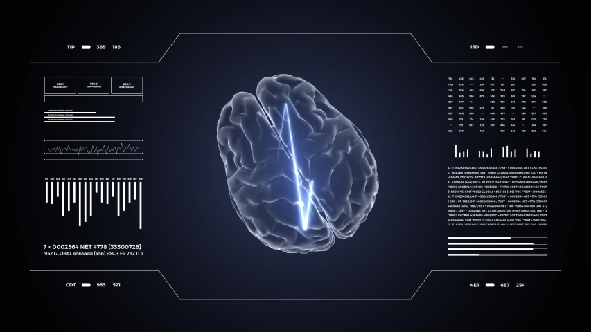 Medical UHD abstract animation. Laboratory dashboard interface 4K. Human brian study on diagnostic computer display.   Shutterstock HD Video #1049267080