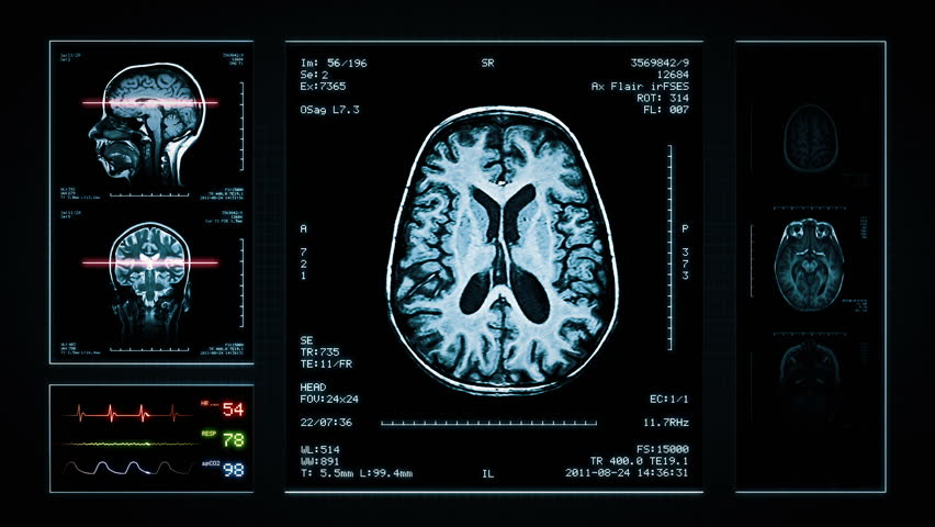 Brain MRI Scan. Blue. 3 videos in 1 file. Animation showing top, front, lateral view and ECG display. Each video is loopable. Medical Background. More options in my portfolio.