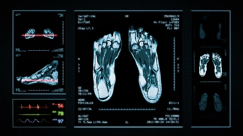 Foot MRI Scan. Blue. 3 videos in 1 file. Animation showing top, front, lateral view and ECG display. Each video is loopable. Medical Background.