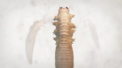 Demodex Folliculorum. Demodicosis - also called demodectic mange or red mange. Demodex Lives in the hair follicles at the base of eyelashes. Human Skin Parasites.
