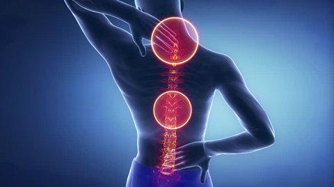Man spine hurt - backbone injury pain concept