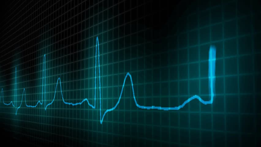 cardiogram healthy heart