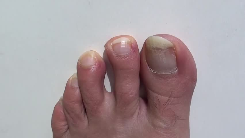 Stock Video Clip of Long nails on toes against white background ...