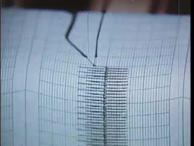Close-up of EKG test output, 1970s