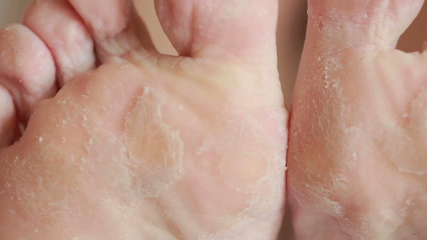 Female feet with skin peeling off. foot scrub after the procedure   Shutterstock HD Video #18919850