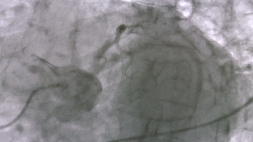 Header of coronary
