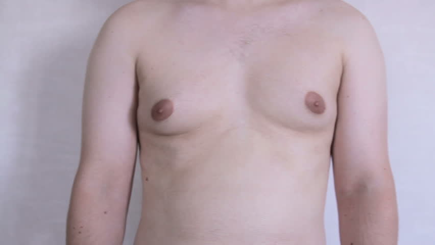 Male thorax showing  Gynecomastia or man boobs