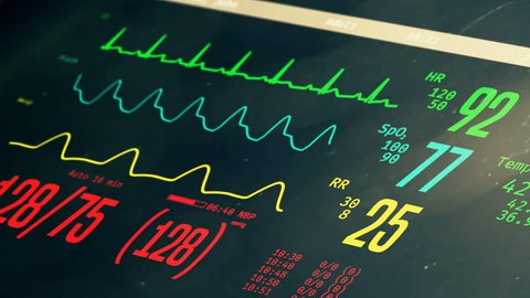 Patient's clinical death and reviving, vital signs rising on bedside ICU monitor. Medical ICU monitor with patient's vital signs