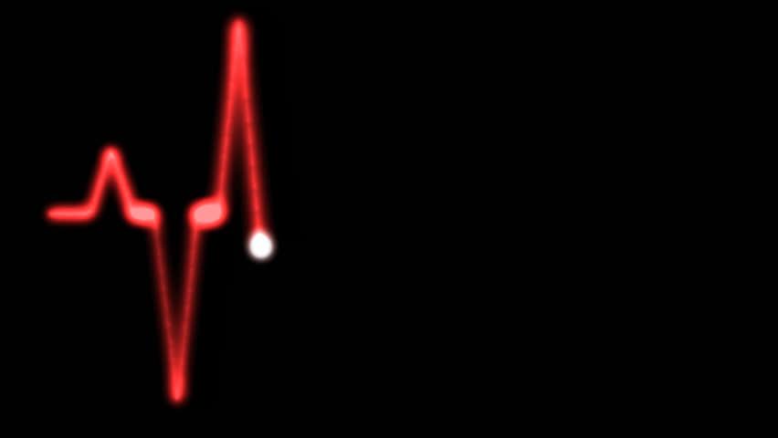 4K Red an animated heart monitor EKG flatlines on black