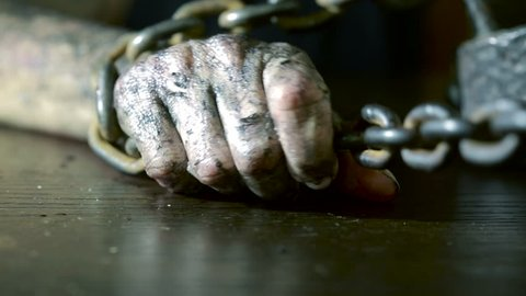Women's fingers with dirty fingernails and burned skin. female hand shackled.