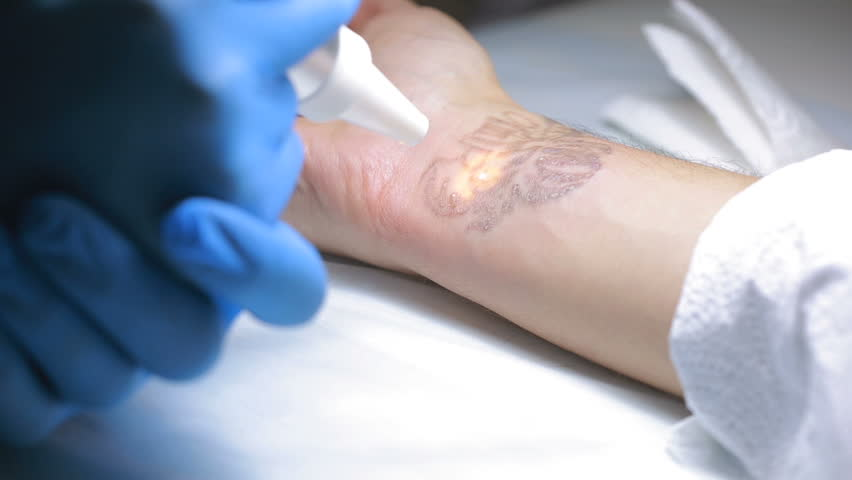 Laser Tattoo Removal With Hand Stock Footage Video 100 Royalty Free 22185070 Shutterstock