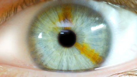 Eye Zoom Into Black Pupil Macro Closeup With Brown Birth Mark