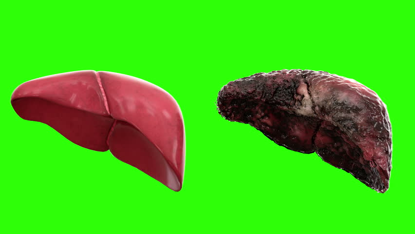 healthy liver and disease liver on green screen rotate. Autopsy medical concept. Cancer and smoking problem.