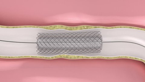 Coronary Angioplasty procedure - plague blocking blood flow