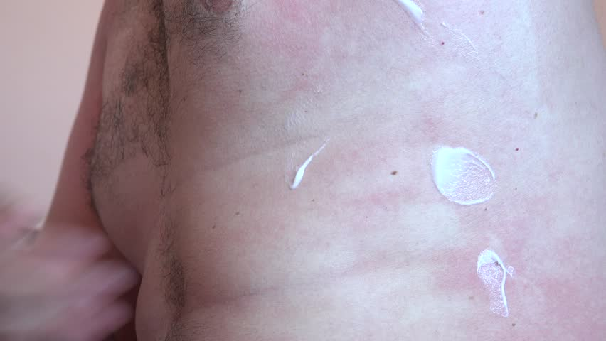 Close up man applying soothing cream lotion to sunburned body treatment required | Shutterstock HD Video #27559330