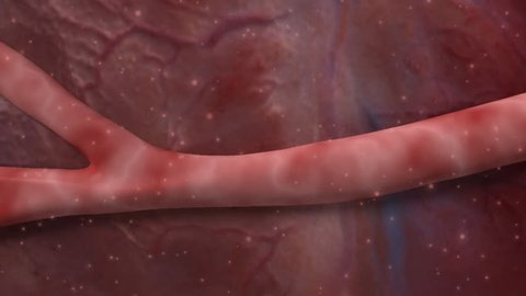 3D footage of the effect of thrombosis (clot formation) within a capillary supplying blood to the brain causing an accumulation of erythrocytes and cerebral ischaemia