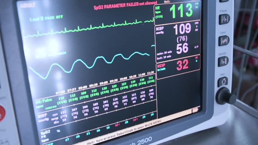 Heart Rate Monitor in Icu Stock Footage Video (100% ...