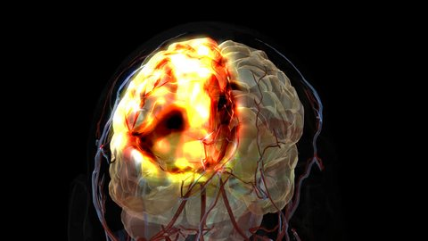Isolated damage to frontal lobe of brain after a thrombus or embolus caused decreased perfusion to the region of nervous/brain tissue