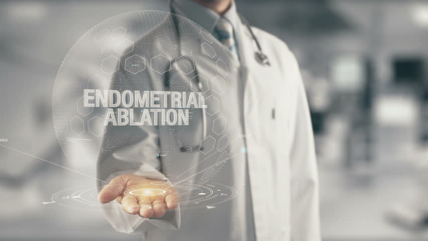 Header of ablation
