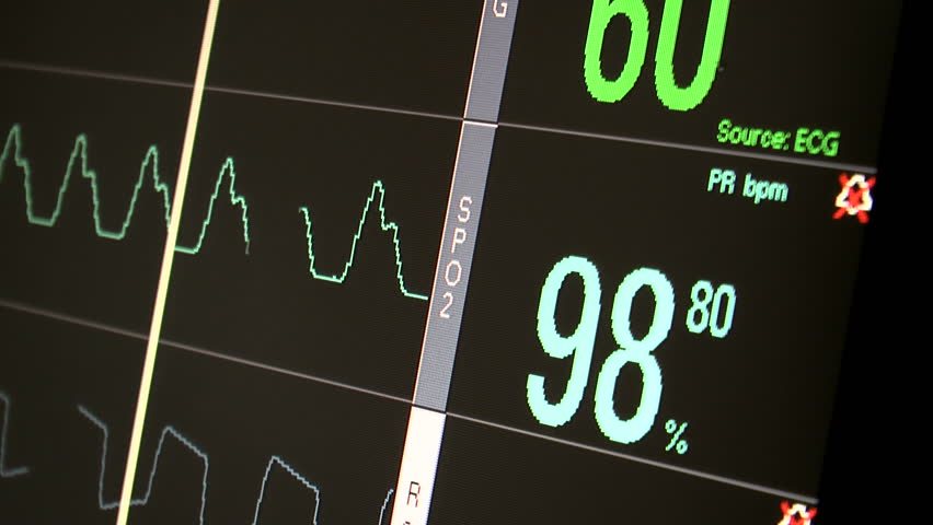 Hospital monitor, zoom out, displays patient ECG or EKG, SPO2 or oxygen saturation and respiration readings. 1080p