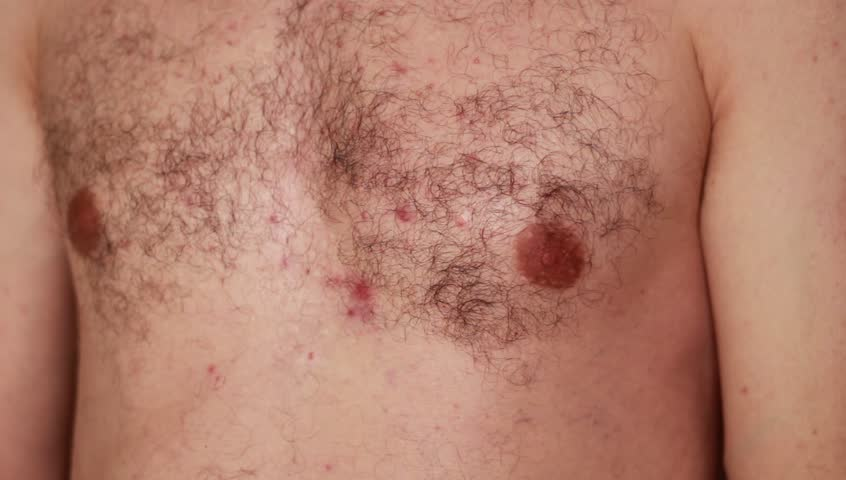 Acne rash on man's chest | Shutterstock HD Video #30357340