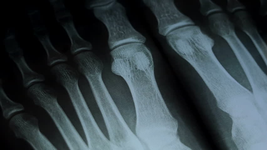 Arthritis. The doctor is considering an x-ray. Makes records in the medical journal. Affected bones and joints. Close up shot. HD video.