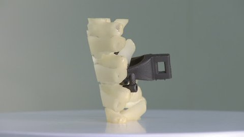 Prosthesis for vertebrae printed with 3D technology. They are rotating on a platform. Medical prosthesis.