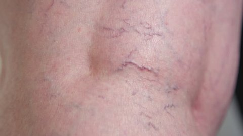 SLOW MOTION CLOSE UP: Unknown lady's curved red varicose veins running down the back of her leg. Examination of elderly woman's problematic leg blood vessels at the doctor's office before procedure.