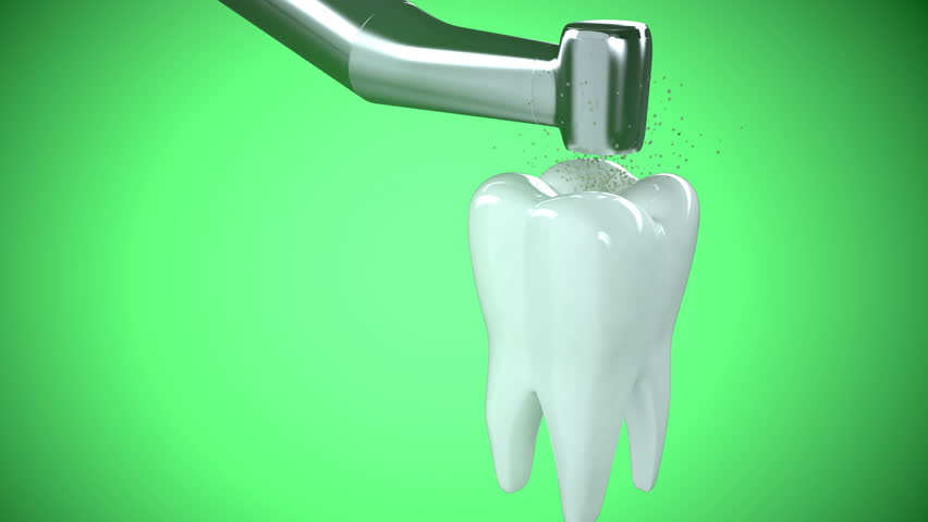 Close-up of treating unhealthy tooth with a drill.