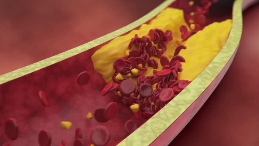 Plaque clogged artery. Digital animation. | Shutterstock HD Video #3671768